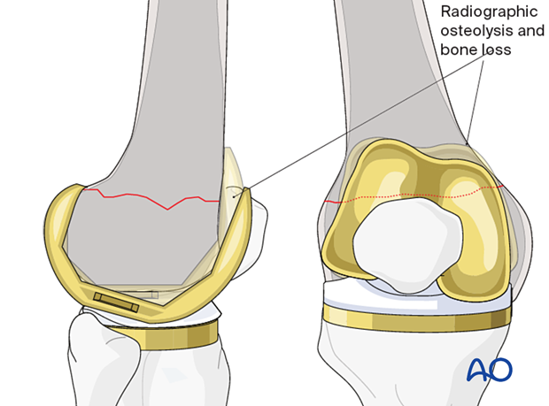 Loss of bone stock and loosening of the femoral component