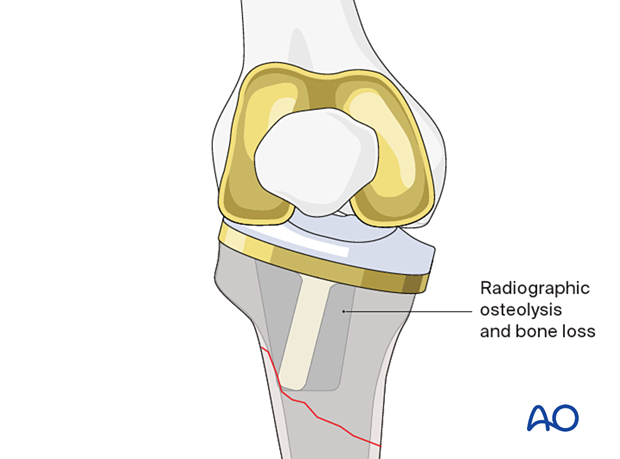 Nondisplaced tibial plateau or tubercle