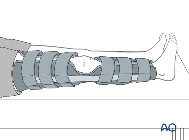 Non-hinged fracture brace