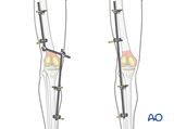 Mobilization with external fixation