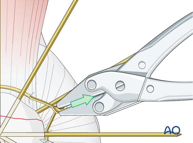 Carefully tighten the wire while pulling away from the patella as the wires are twisted