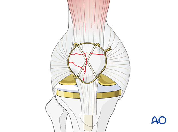 Patellar cerclage wire