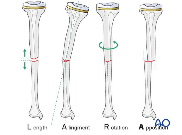 P305 Tibia mobilization with splint or plaster