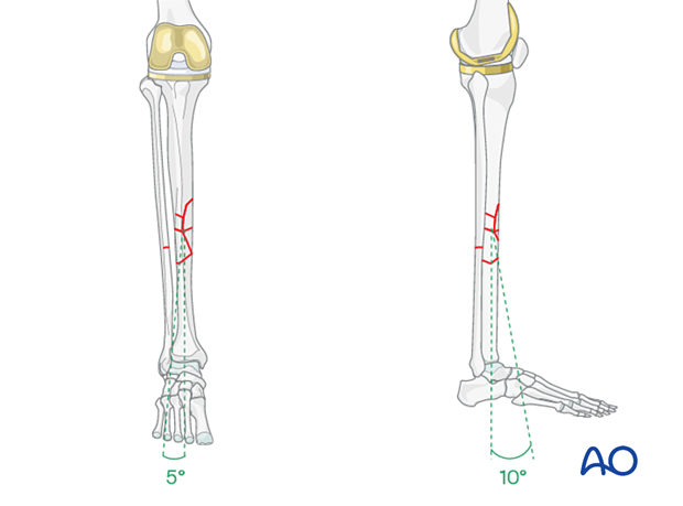 Aligning the anterior tibial crest of the distal fragment with the proximal one