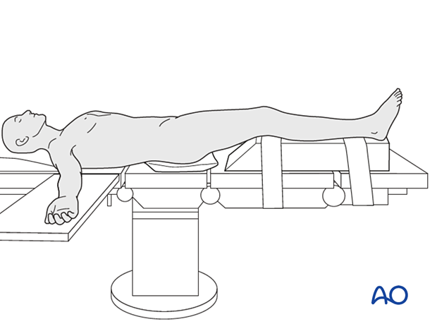 Patient in a supine position