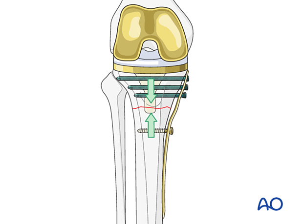 Under contouring of the plate for transverse fracture