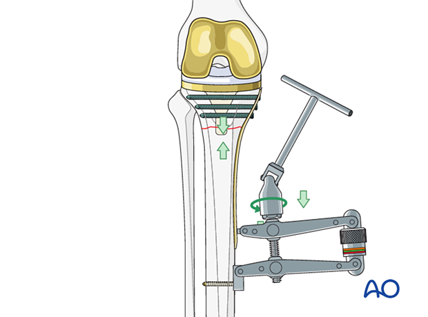 An articulated tensioning device can be used for reduction