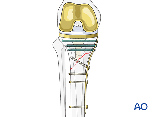 Compression secured through insertion of screws in oblique fractures