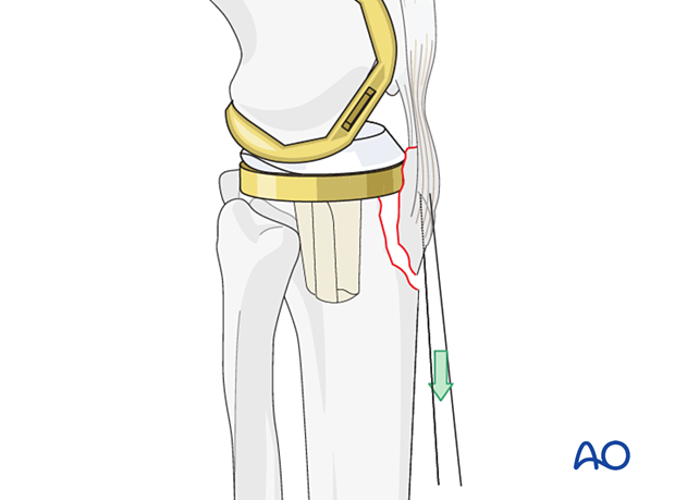 Large non-absorbable sutures can be inserted in the patellar tendon to aid in reduction