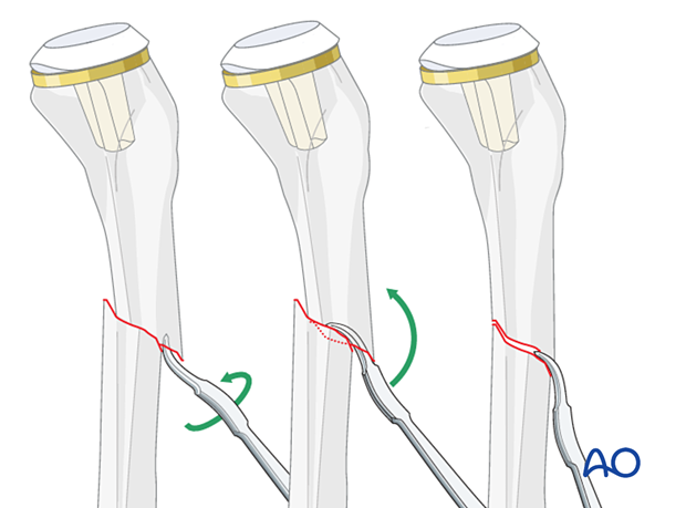 Direct fracture manipulation