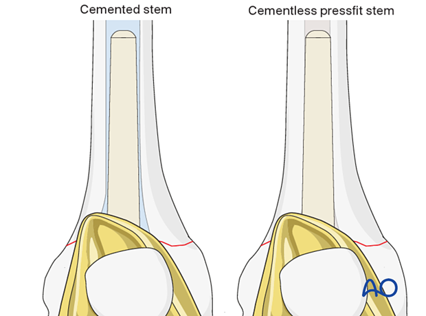 The diameter of the stem is determined by the reamer diameter which achieves cortical contact with the diaphyseal bone