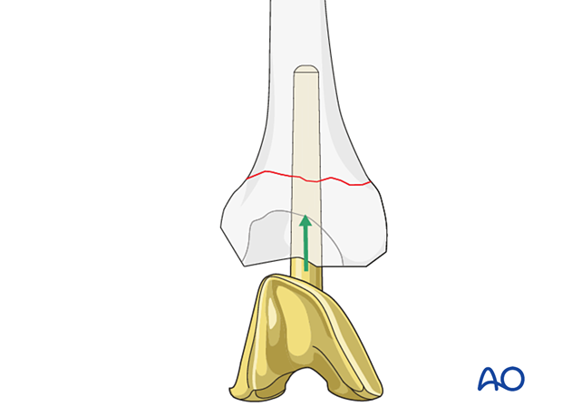 Insertion of the femoral component