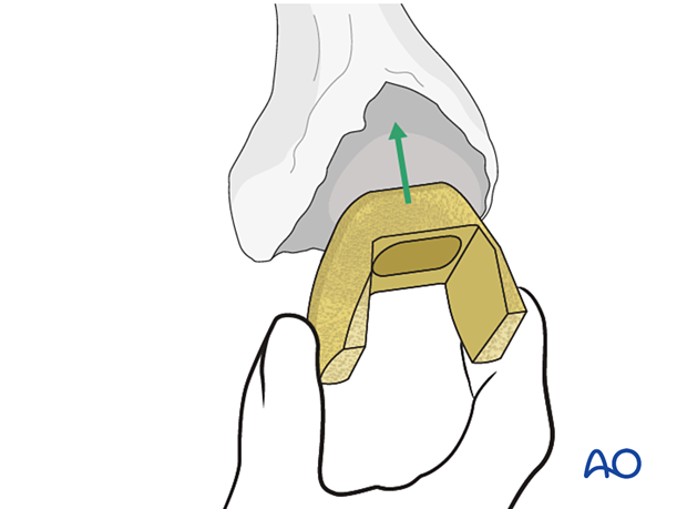 Supplemental femoral metaphyseal fixation