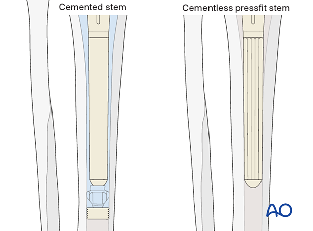 P425 Complete revision of tibial components with CCK