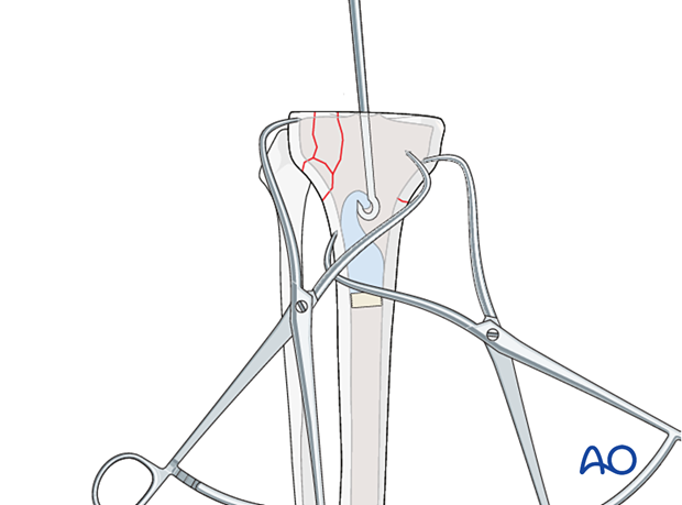 Cement removal in the tibial metaphysis