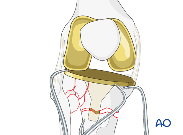 Tibial fracture provisional fixation