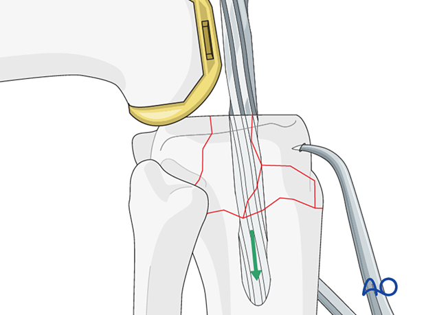 Preparation of the tibial canal