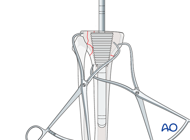 P440 Complete revision of tibial components hinged knee