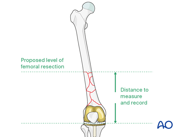 Length of hinged femoral component