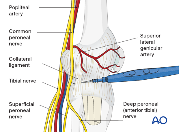 Removal of femoral component