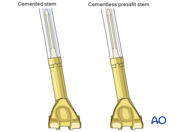 The diameter of the stem is determined by the reamer diameter which achieves cortical contact with the diaphyseal bone.