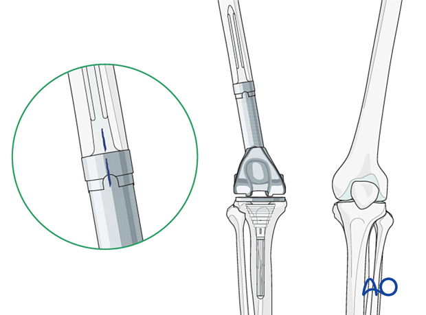 P445 Distal femoral replacement