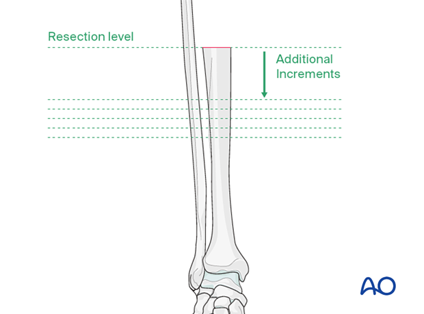Preparation of the tibia