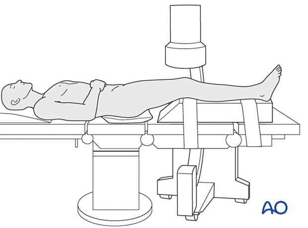 Supine position with C-arm